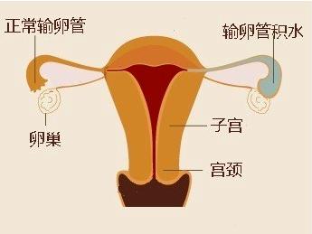 输卵管积液有何症状以及危害